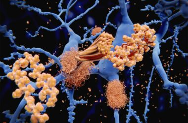 Amyloid Protein Clumps Along Neurons