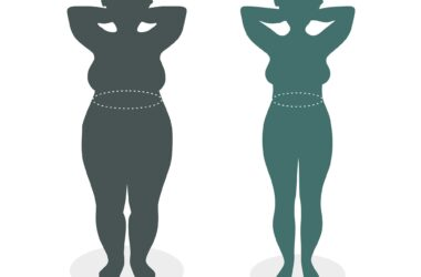 Obesity Weight Loss
