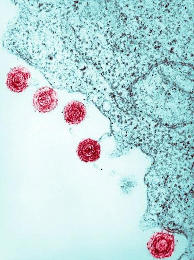 Herpèsvirus humains 6
