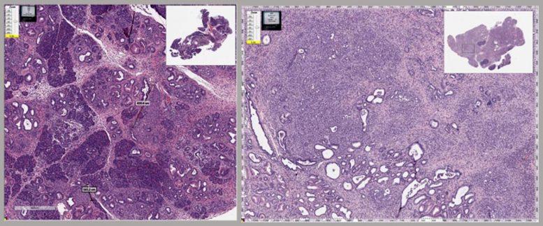 Pancréas de souris avec cancer