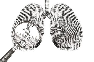 Lung Cancer Research