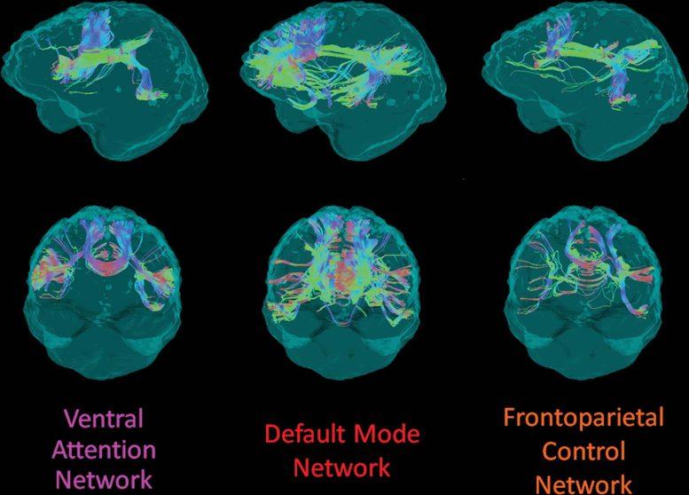 Intégrité de la substance blanche Mutation du gène d'Alzheimer