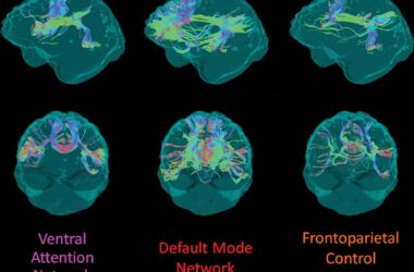 White Matter Integrity Alzheimer's Gene Mutation